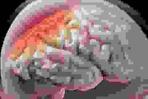 Phù não khi điều trị ung thư