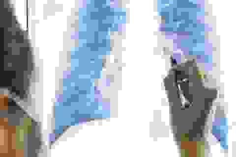 Ung thư phổi: Sàng lọc sớm hiệu quả điều trị cao