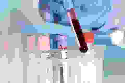 Phương pháp mới phát hiện mầm mống ung thư trước 4 năm