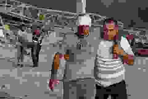 Sống sót kỳ diệu sau 30 giờ bị hất văng xuống biển vì vụ nổ Beirut