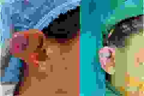 Bé gái 11 tuổi bị cắt một phần tai vì khối u tưởng đơn giản