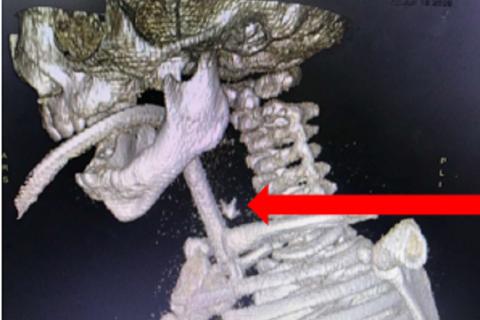 Mẹ cho ăn dặm, bé trai bị xương lươn đâm thủng thực quản
