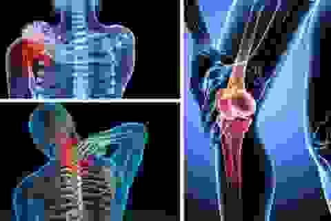 TPBVSK  Khang Cốt Đơn - Giải pháp hỗ trợ người mắc bệnh xương khớp