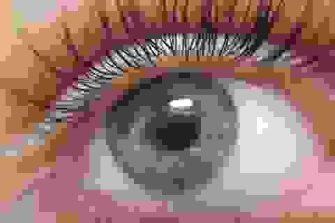 Tìm ra cách đoán được nguy cơ tử vong sớm qua mắt người bệnh?
