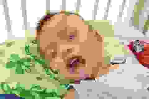 Bé trai 21 tháng tuổi loét thực quản, dạ dày vì uống nhầm chất tẩy bồn cầu