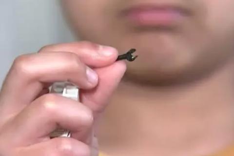 Bé 7 tuổi mắc kẹt mảnh ghép Lego trong lỗ mũi suốt 2 năm