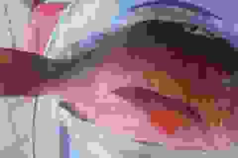 23 người nhập viện vì ngộ độc cá hồng