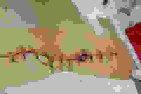 Nam công nhân bị đâm lộ hết ruột ra bên ngoài, thủng dạ dày, gan