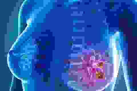 U xơ tuyến vú có tiến triển thành ung thư?