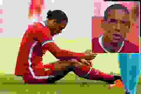 Van Dijk đổ máu trong trận Liverpool may mắn hòa Salzburg
