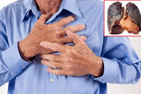 Dấu hiệu sớm nhận biết ung thư phổi