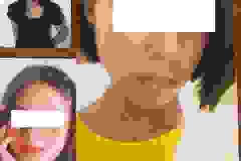 Giải cứu 5 nữ sinh bị dụ dỗ, ép làm nhân viên quán karaoke