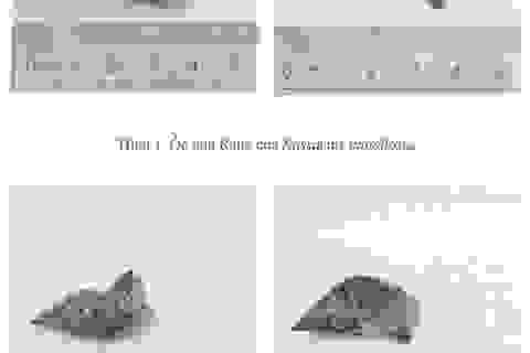 """Vụ ngộ độc ốc """"lạ"""" ở Khánh Hòa: Trong ốc biển có độc tố thần kinh"""