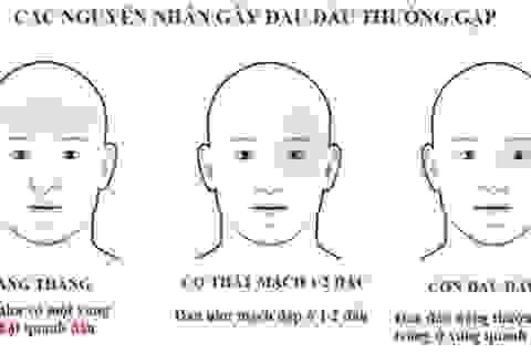 Khi nào đau đầu là dấu hiệu nguy hiểm bạn cần đi khám ngay?