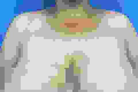 Nỗi khổ của người phụ nữ gần 3 thập kỷ chung sống với bộ ngực khổng lồ