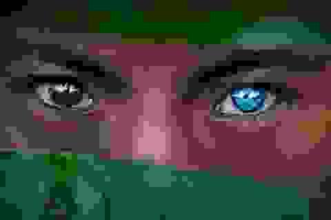 Bộ tộc bí ẩn mắc hội chứng hiếm gặp, sở hữu đôi mắt màu xanh biếc kỳ lạ
