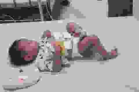 Mổ cứu sống thành công bé gái 10 tháng tuổi có nang ống mật chủ cực lớn
