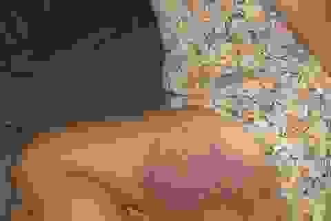 Đắk Lắk: Tạm đình chỉ cô giáo đánh bầm tím đùi học sinh lớp 3