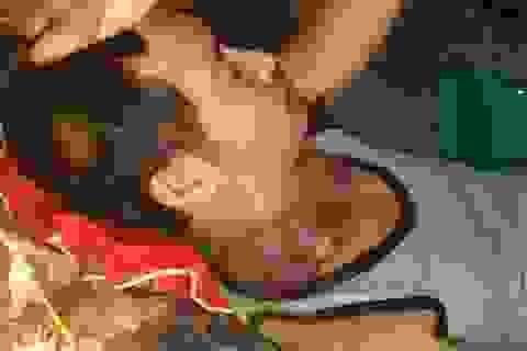 Người đàn ông nghèo đau đớn mang khối u như những chiếc bát úp vào cổ