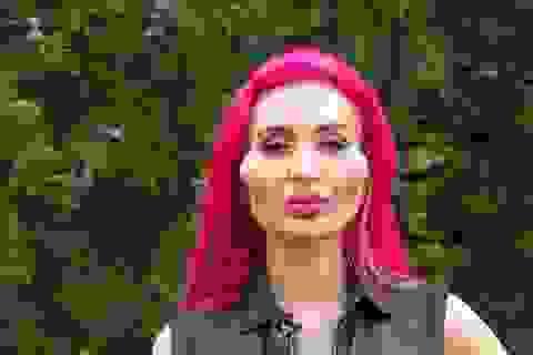 """Người mẫu với gò má """"khủng nhất thế giới"""" vẫn muốn xinh đẹp hơn"""