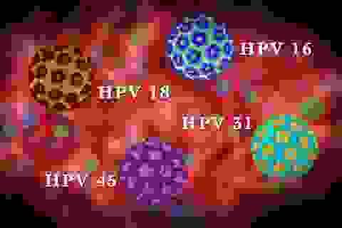 Các giai đoạn phát triển của ung thư cổ tử cung do nhiễm HPV