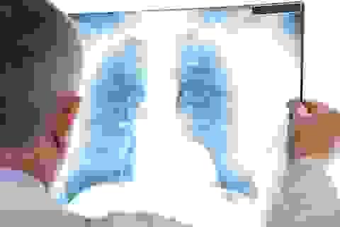Phát hiện sớm ung thư phổi bằng phương pháp đơn giản, giá rẻ