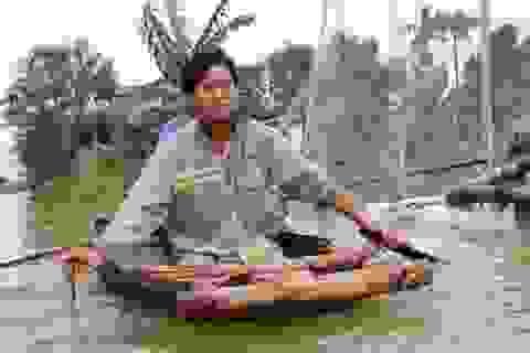 Cách nhận diện bệnh ngoài da do mưa lũ người dân miền Trung cần biết