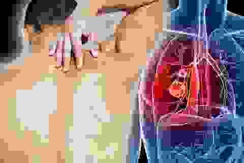 5 bệnh ung thư phổ biến nhất ở nam giới, phòng tránh như thế nào