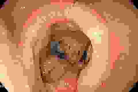 Đi ngoài phân đen, dấu hiệu của ung thư dạ dày