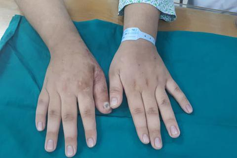 Lấy da, móng, mạch máu ngón chân tạo hình ngón tay mới chàng trai trẻ