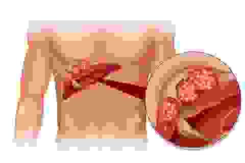 Có phát hiện được sớm ung thư gan?