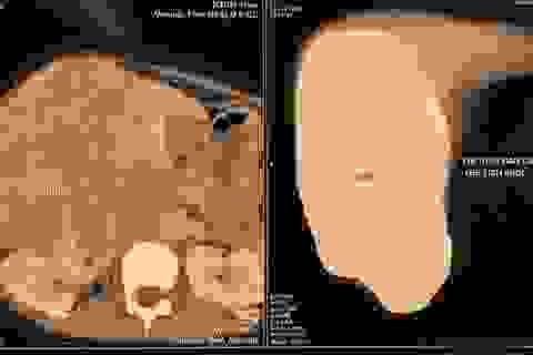 Trẻ mới 12 tuổi đã mắc ung thư gan, cha mẹ cần cảnh giác