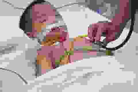 Biến chứng bệnh tay chân miệng: Bé trai suy hô hấp, tổn thương não nặng