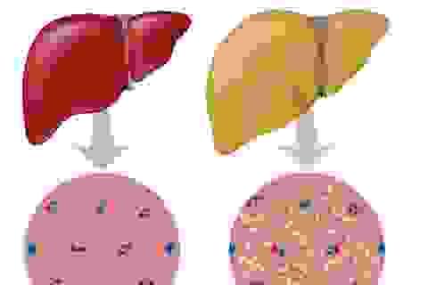 """Không có triệu chứng, gan nhiễm mỡ """"âm thầm"""" tiến triển viêm gan, xơ gan"""