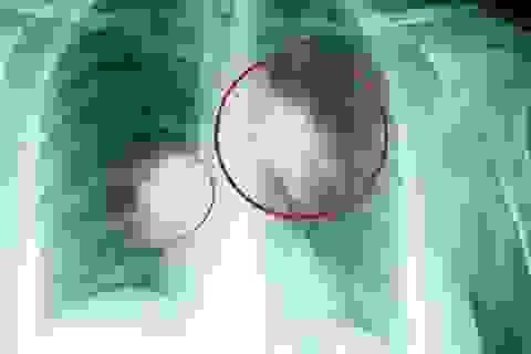 Hiểu biết mới về ung thư phổi tạo đột phá trong điều trị