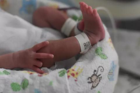 """Lạ lùng bé sơ sinh chào đời với 2 """"cậu nhỏ"""""""