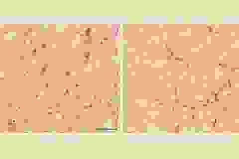 Cấu trúc của não và vũ trụ có những điểm tương đồng đáng ngạc nhiên