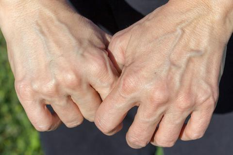 Bàn tay xuất hiện những dấu hiệu này cẩn thận gan có vấn đề