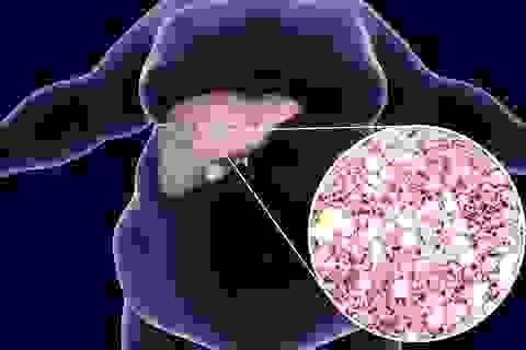 Mầm mống của nhiều bệnh gan nguy hiểm mà mọi người thường chủ quan