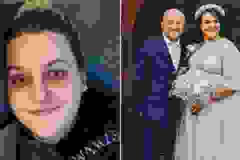 """Giả mắc """"ung thư giai đoạn cuối"""", quyên tiền làm đám cưới trong mơ"""