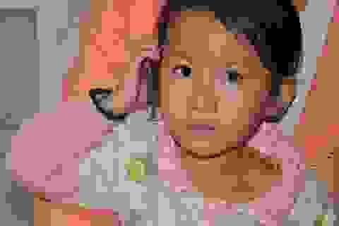 Em bé Khánh Thi đã được phẫu thuật cấy điện cực ốc tai