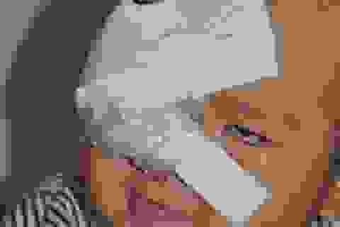 Bé Nam Phong sẽ được chữa trị hóa chất miễn phí tại bệnh viện K