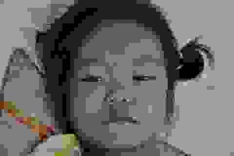 Bé 6 tuổi tím tái mong được phẫu thuật tim