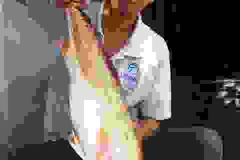 """Chưa bán được cá """"lạ"""" nghi là cá Sủ vàng"""