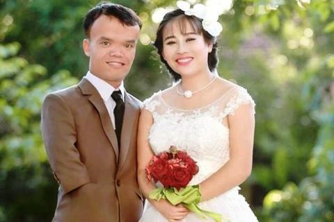 """Đám cưới cổ tích của chàng rể """"tí hon"""" và cô dâu xinh đẹp"""