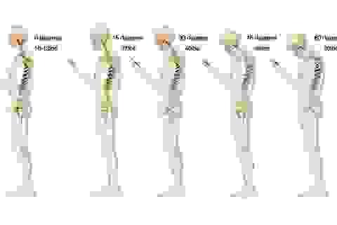 5 tác hại tới sức khỏe từ việc nhắn tin trên điện thoại