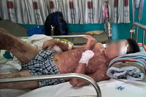 Bệnh nhân bỏng nặng vì dùng xăng nhóm lửa