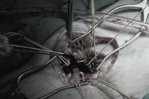Cứu sống bệnh nhân bị huyết khối tĩnh mạch sâu bằng phương pháp mới