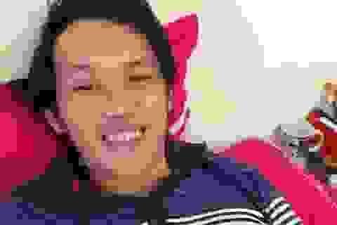 Thực hư chuyện NSƯT Hoài Linh đang nguy kịch vì phẫu thuật ung thư
