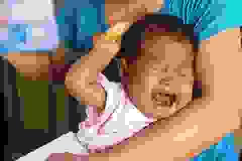 Tiếng khóc xé lòng của bé thơ 9 tháng tuổi bị teo ống mật bẩm sinh